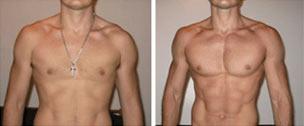 Somatodrol results 1